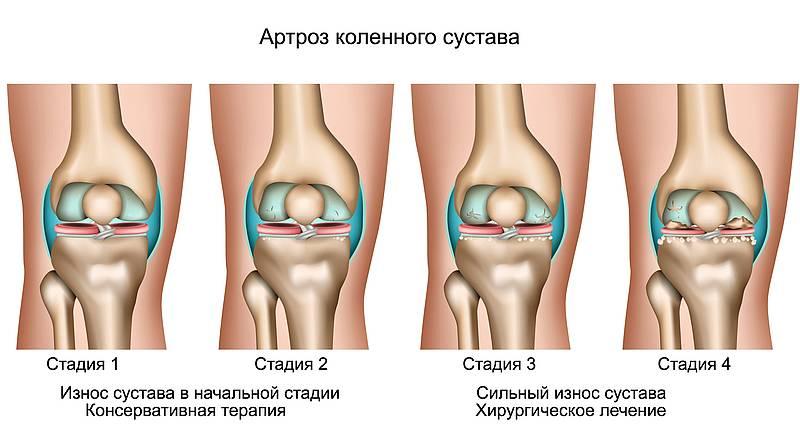Артроз и замена суставов гарантия упражнения с палкой для восстановления плечевого и локтевого сустава
